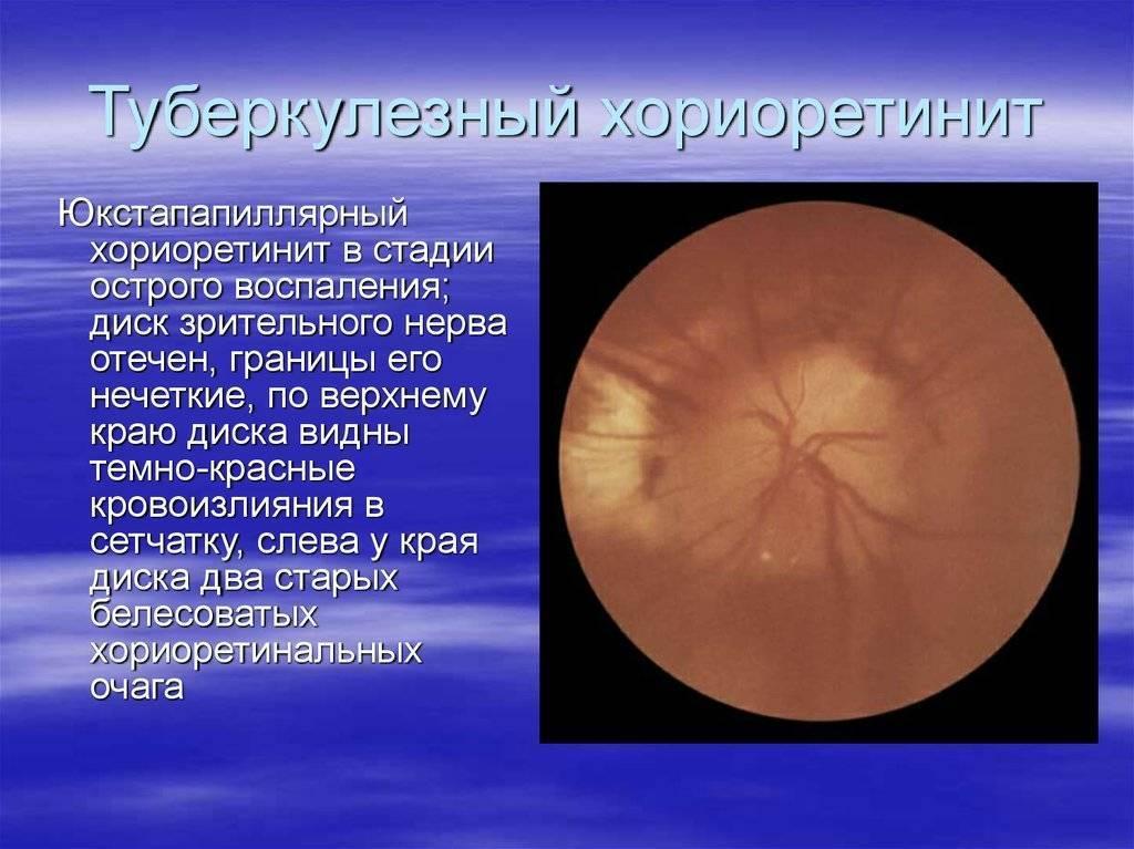 О чем сигнализирует резь в глазах