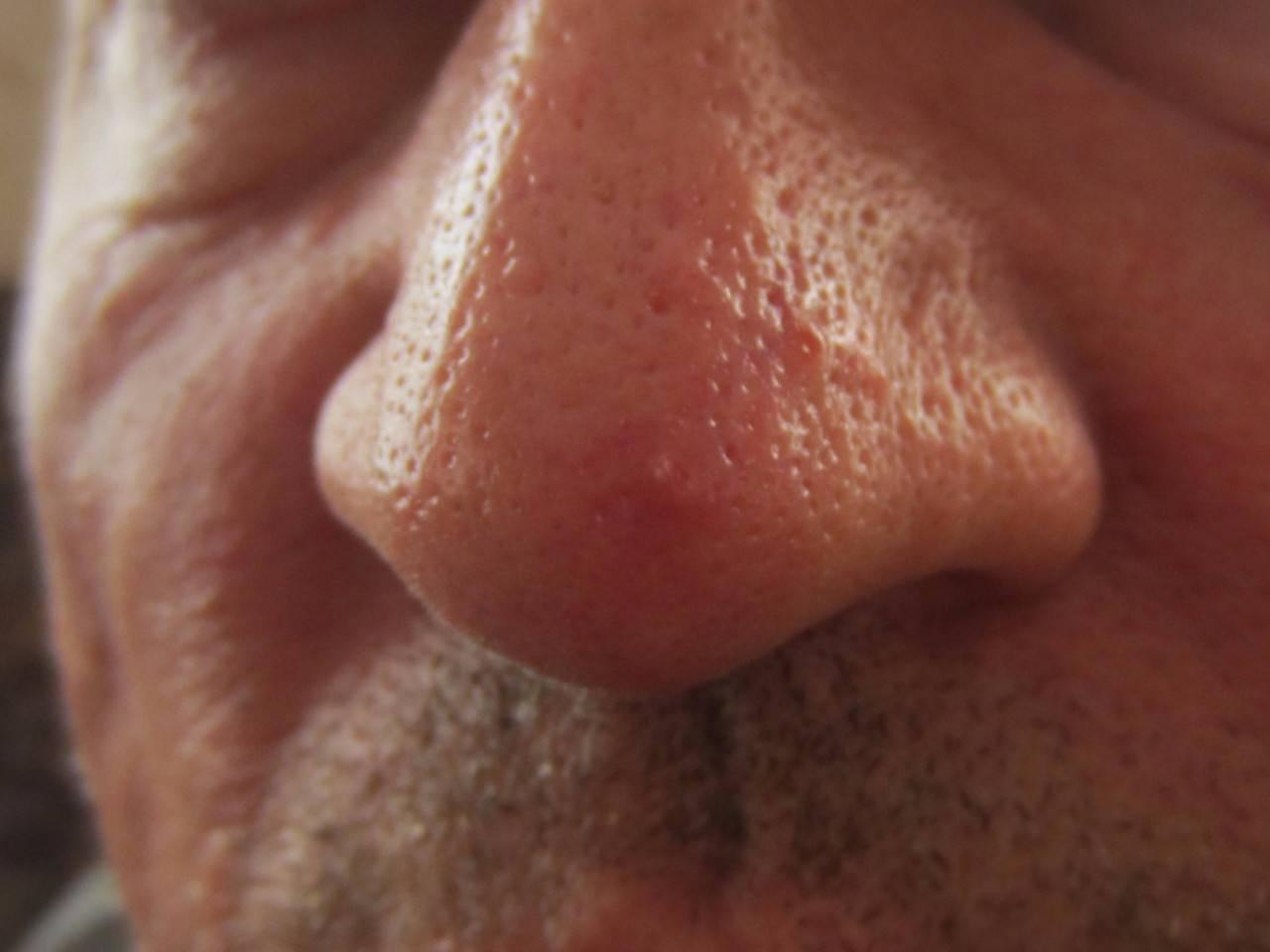 Болячки в носу