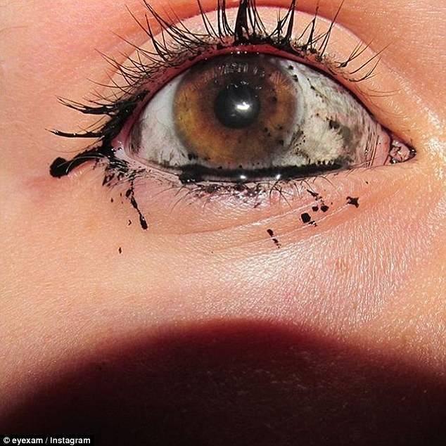 инородное тело в глазу первая помощь