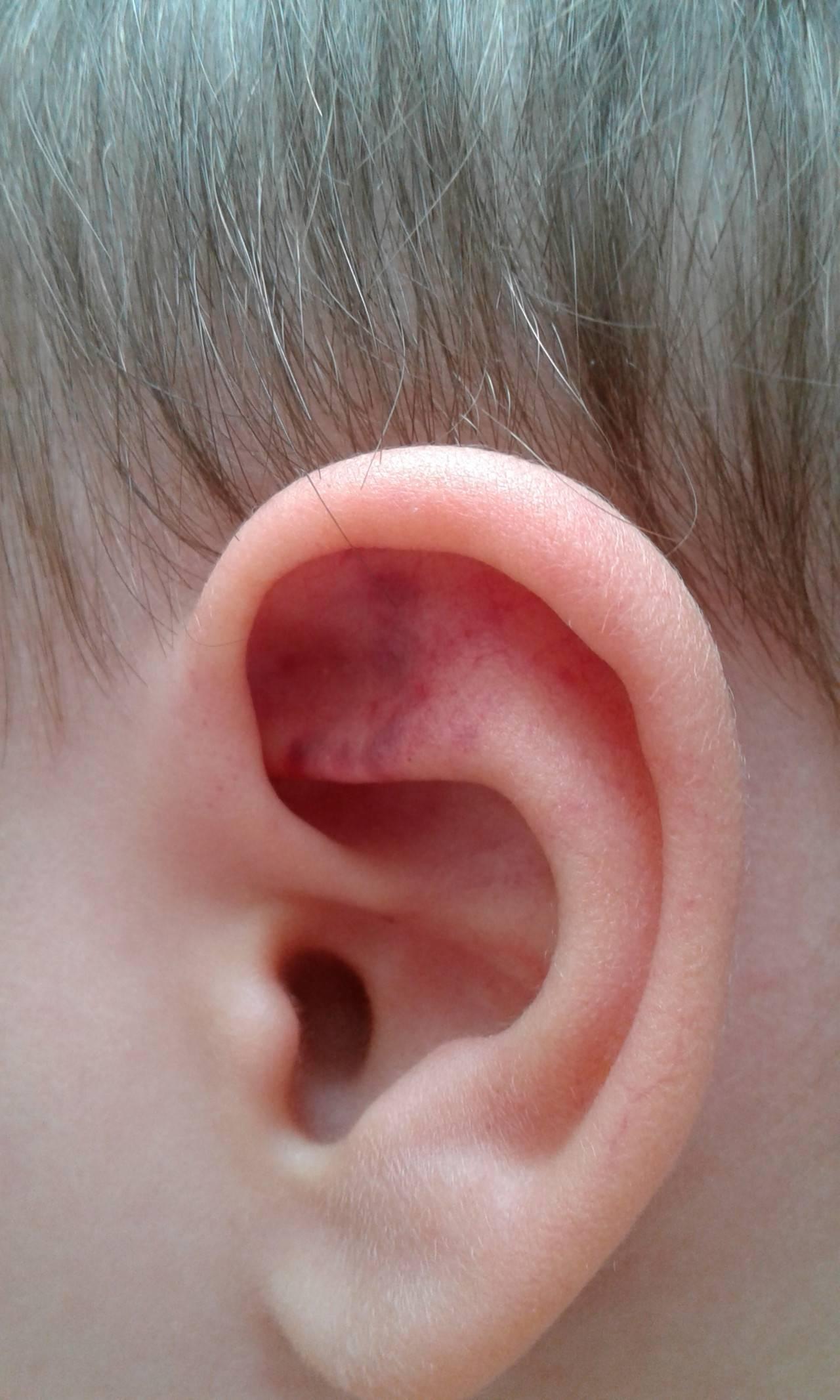 """""""краснеют уши?"""" - основные причины феномена"""