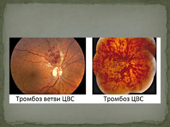 тромбоз глаза лечение