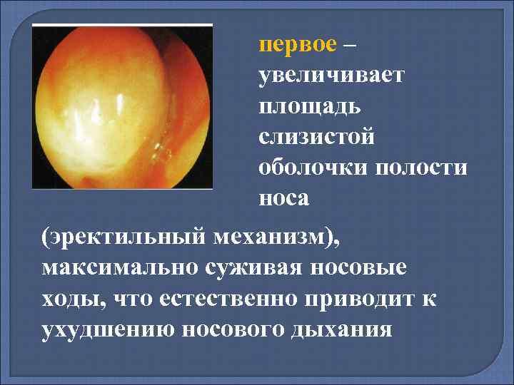 Симптомы и лечение гиперплазии слизистой носа