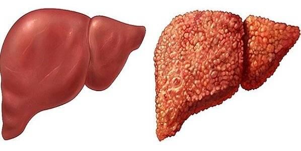 В каких случаях при гепатите с болит печень