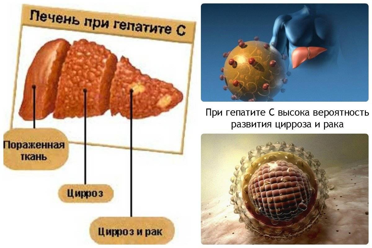 Продолжительность жизни с гепатитом с