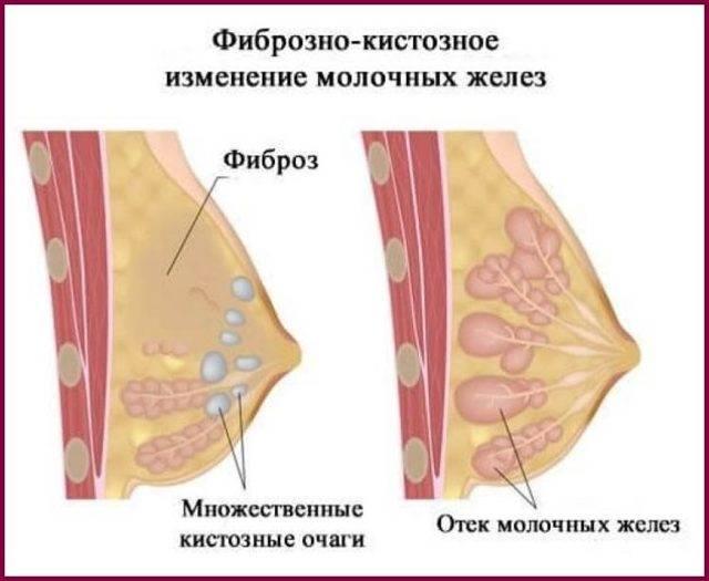 умеренная диффузная фиброзная мастопатия