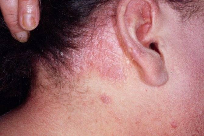 Себорейный дерматит (себорейная экзема, себорея) - причины, симптомы, лечение, отзывы. диета при себорейном дерматите