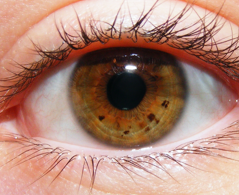белые пятна в глазах