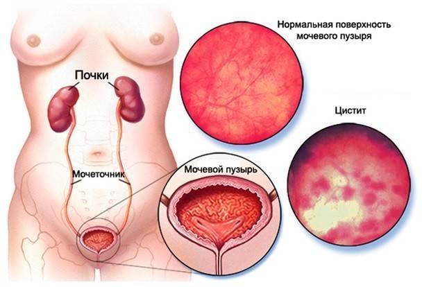 Цистит у женщин осложнения