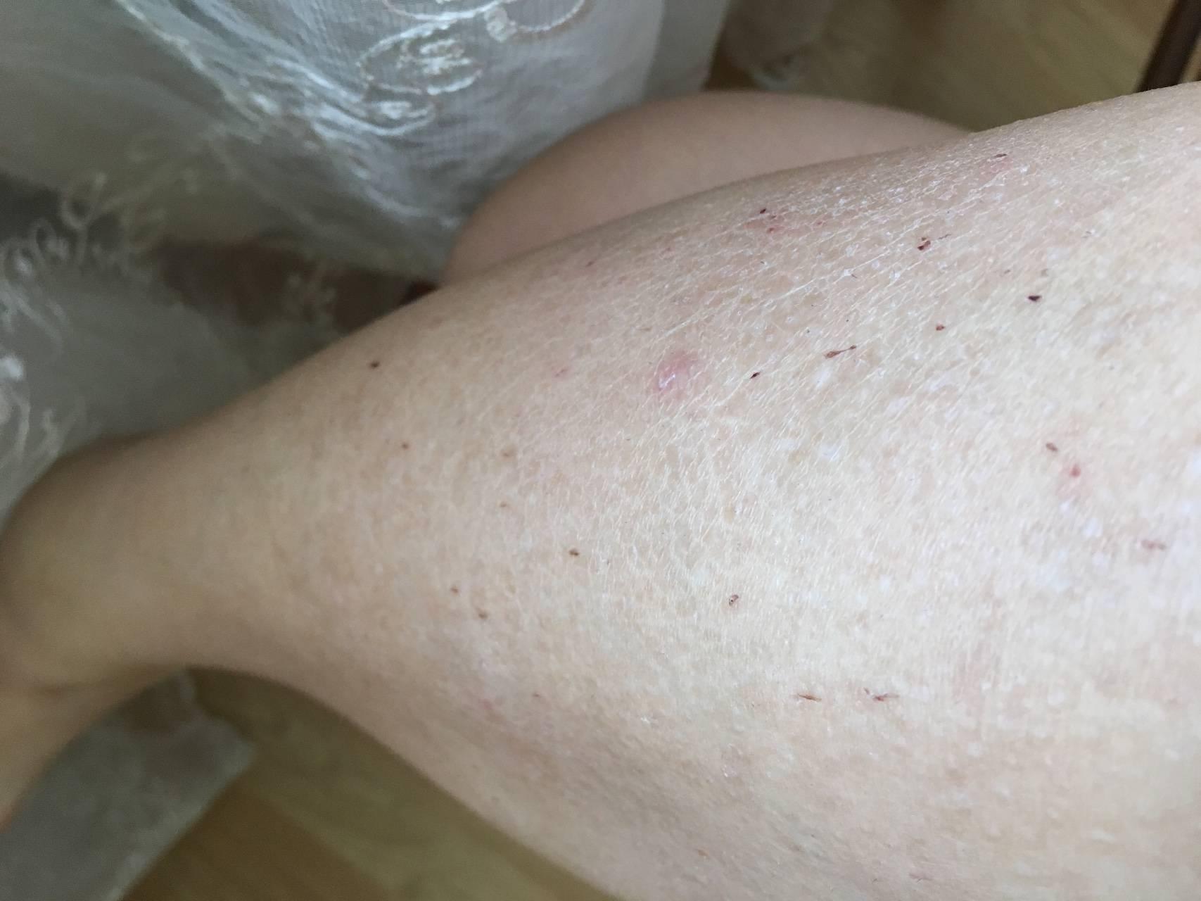 дерматит ног как выглядит