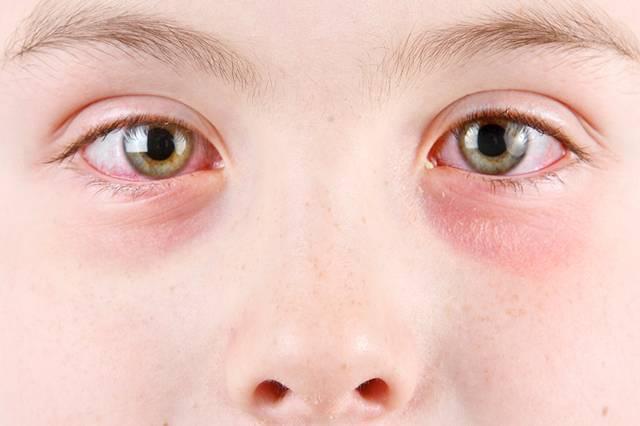 у ребенка опухли и покраснели глаза