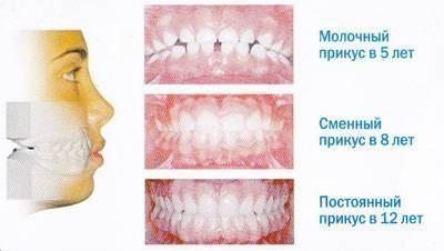 каких зубов нет в молочном прикусе