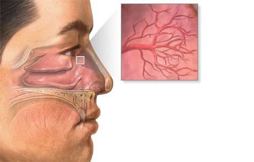 кровяные корки в носу причины