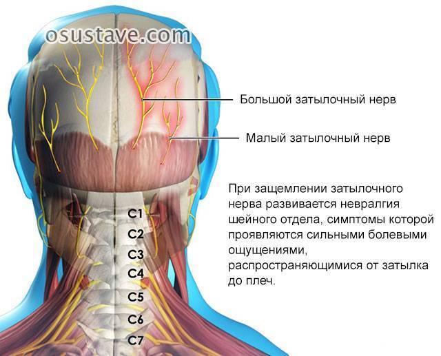 Невралгия симптомы у взрослых лечение шеи