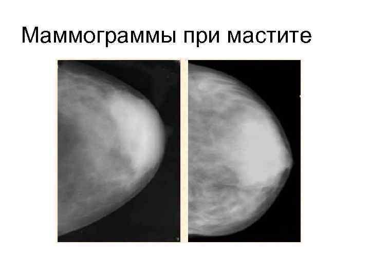 Маммография молочных желез: правила и особенности проведения процедуры