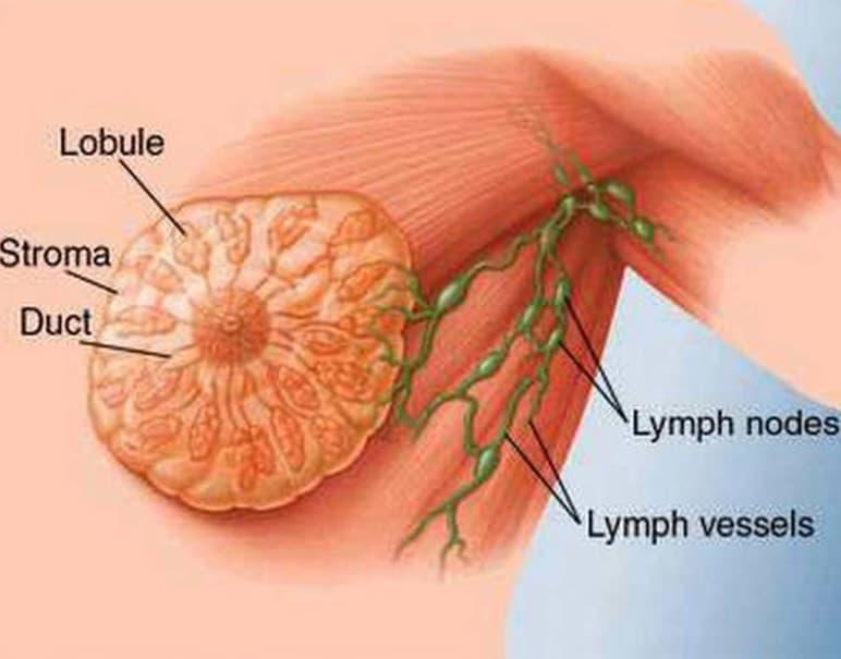 Увеличение лимфоузлов при фиброаденоматозе