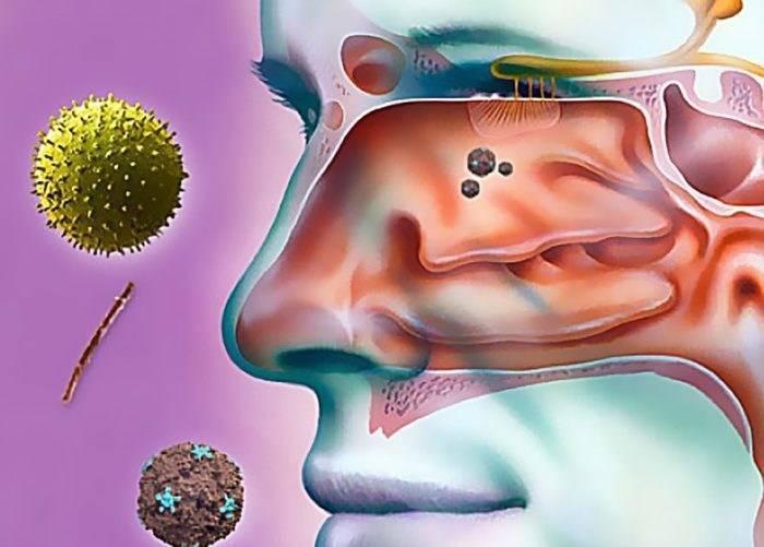 Как распознать гайморит, протекающий без насморка