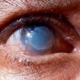 Химические ожоги глаз