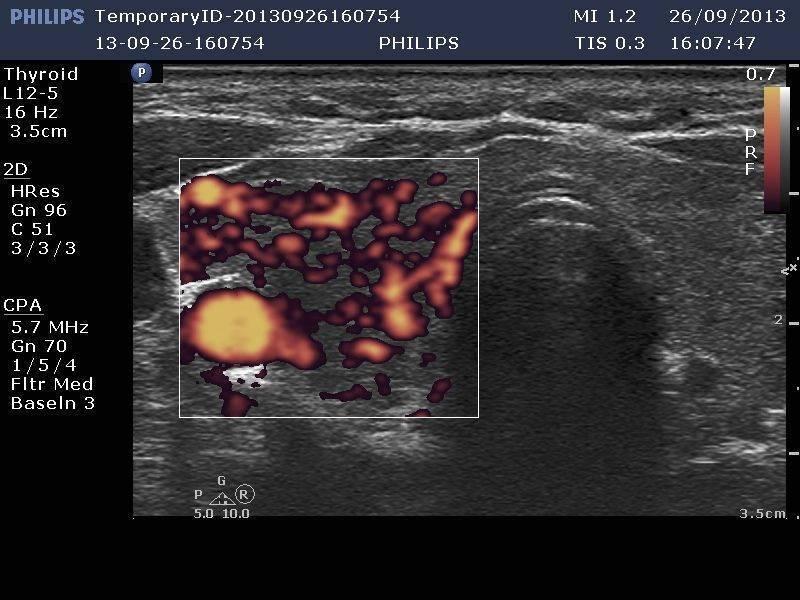 щитовидная железа кровоток усилен что это значит