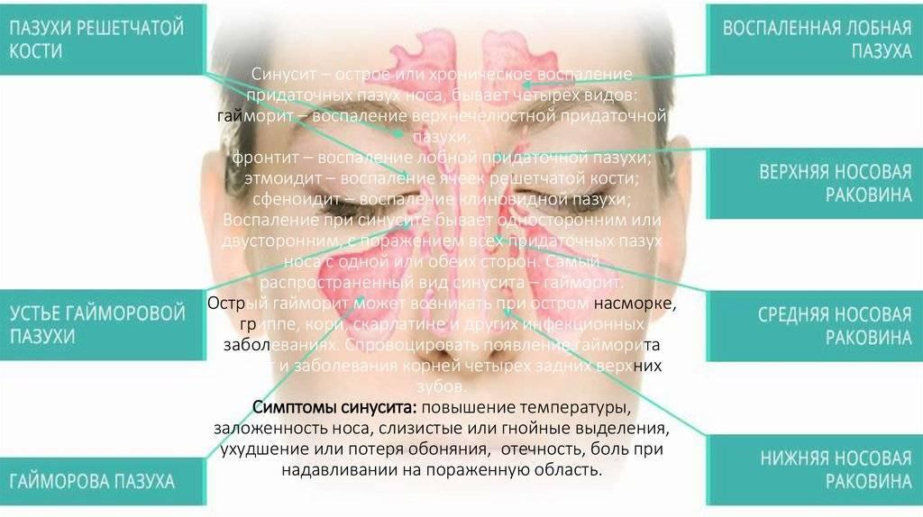 Хронический синусит: симптомы, классификация и лечение
