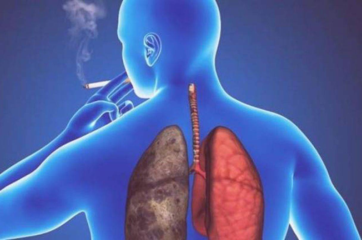Лечение сухого кашля у взрослого: обзор самых эффективных методов