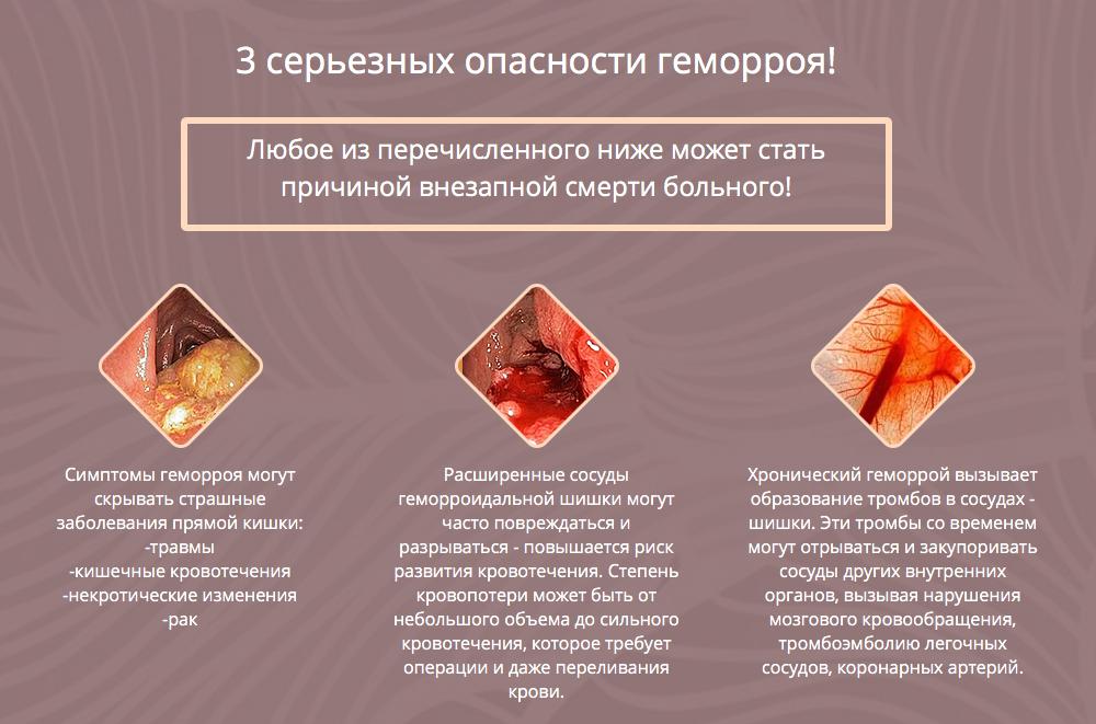геморрой кал с кровью лечение