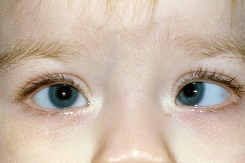 что такое ленивый глаз