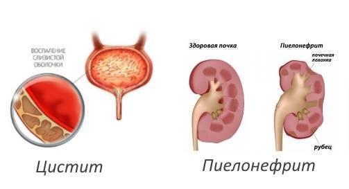 пиелонефрит цистит лечение