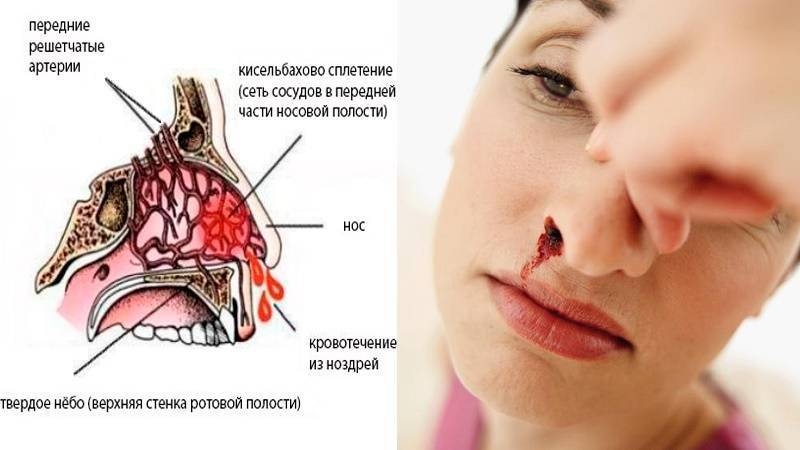 кровавые корки в носу
