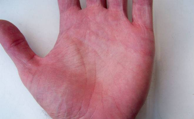 пятна на ногах при болезни печени
