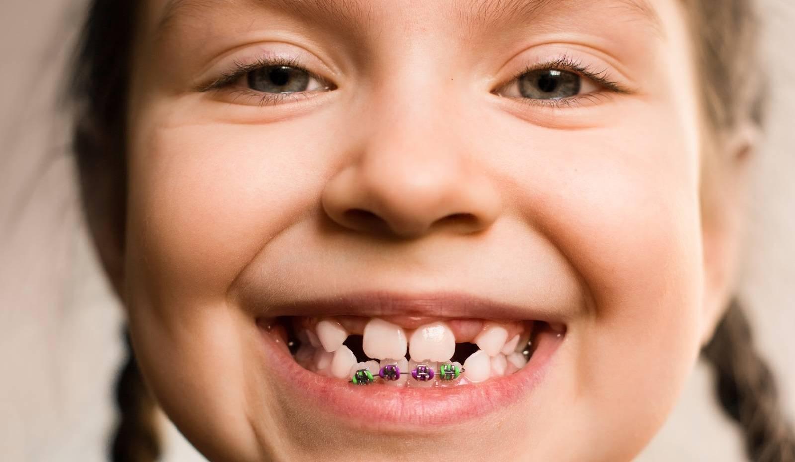 что лечит ортодонт детский