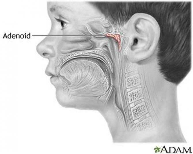 Аденотомия (удаление аденоидов): показания, способы, ход, реабилитация