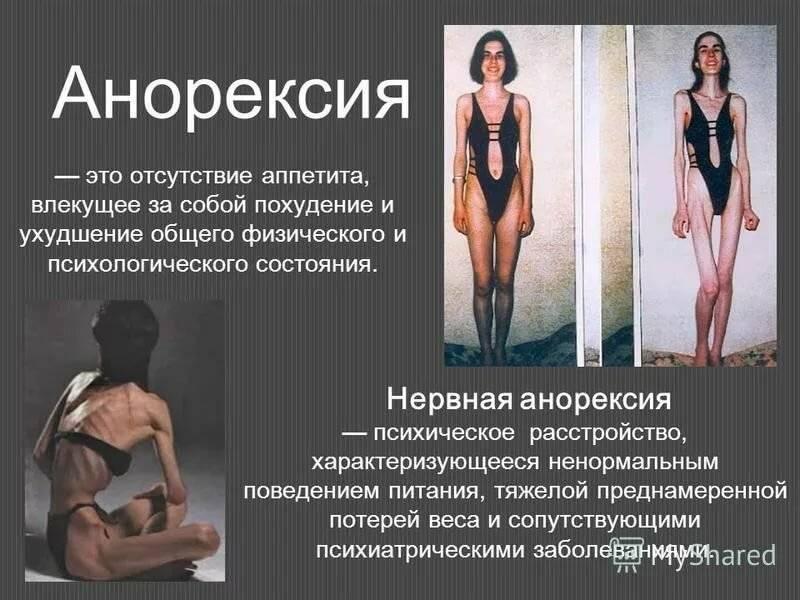 Анорексия у подростков: причины и признаки модной болезни