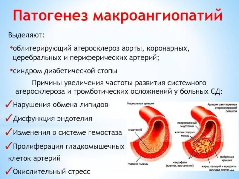 Атеросклероз аорты: лечение и какой прогноз на жизнь