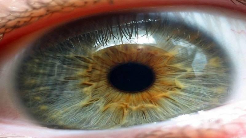 Болит радужка глаза