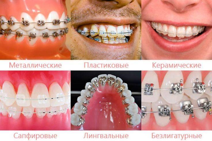 Для чего нужны брекеты на зубах?