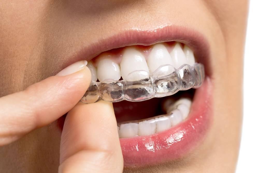 Зубы после брекетов - правила ухода, все о ретейнерах