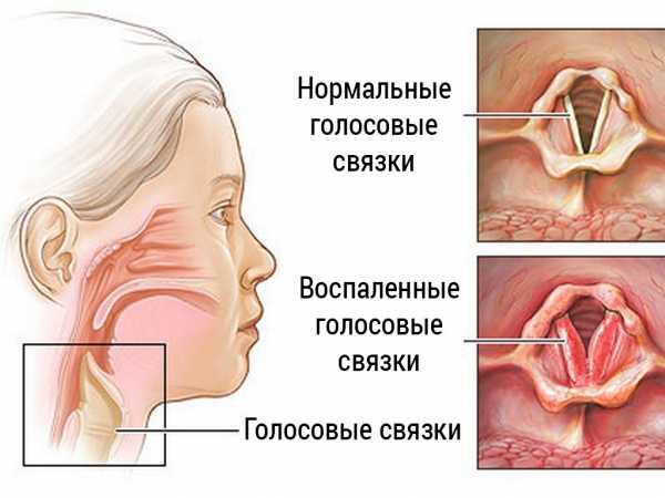 У ребенка осип голос: чем лечить и что делать с грудничком (комаровский)