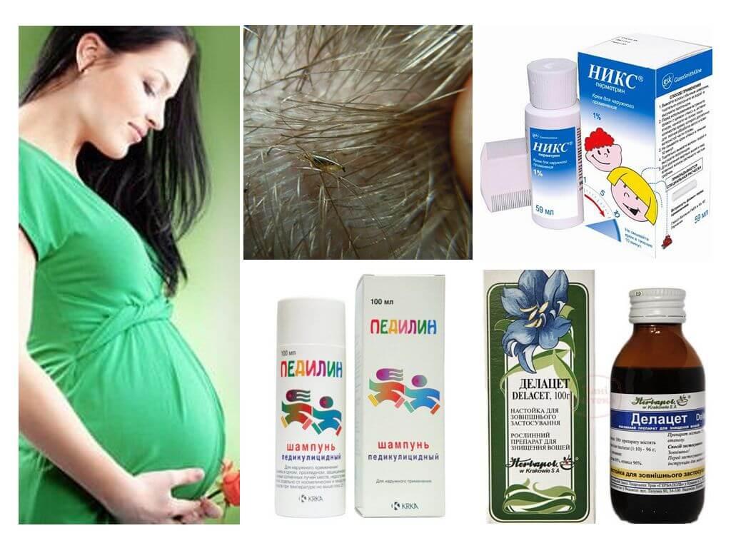 средства от вшей при беременности