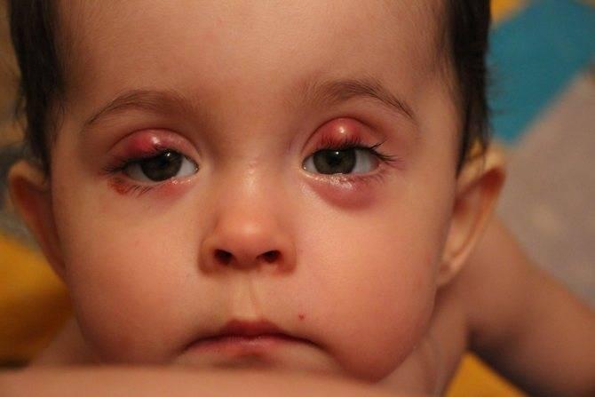Халязион нижнего века у ребенка: лечение и причины развития — симптомы