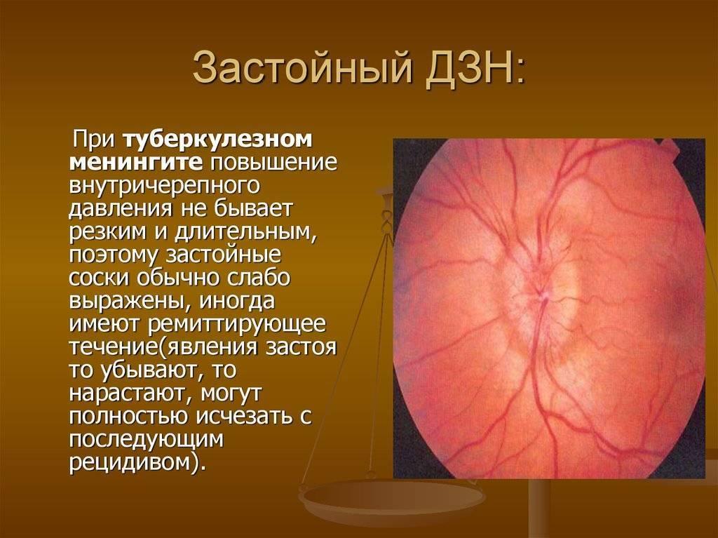 застойные диски зрительных нервов