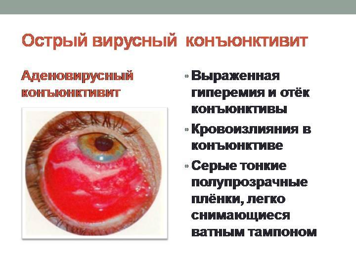 Аденовирусный конъюнктивит — эффективное лечение