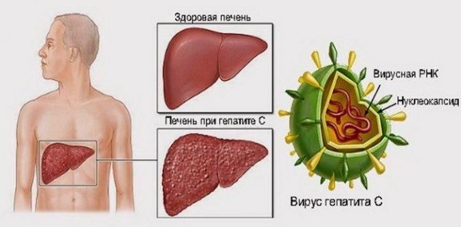 Самый опасный гепатит какой