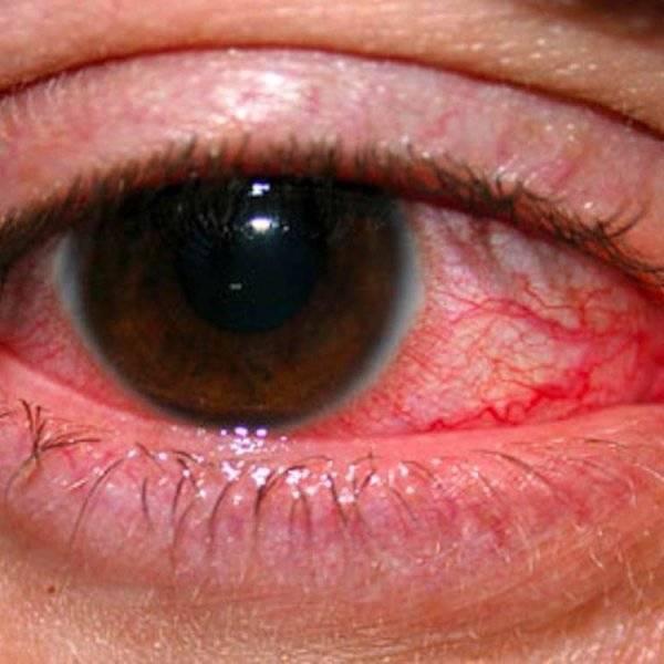 глазные капли от кератита у человека