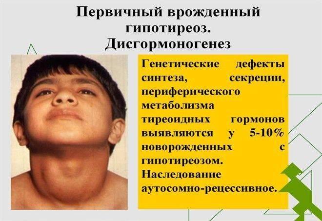 Субклинический тиреотоксикоз