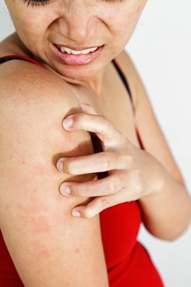 Дерматит аллергический народные средства при зуде