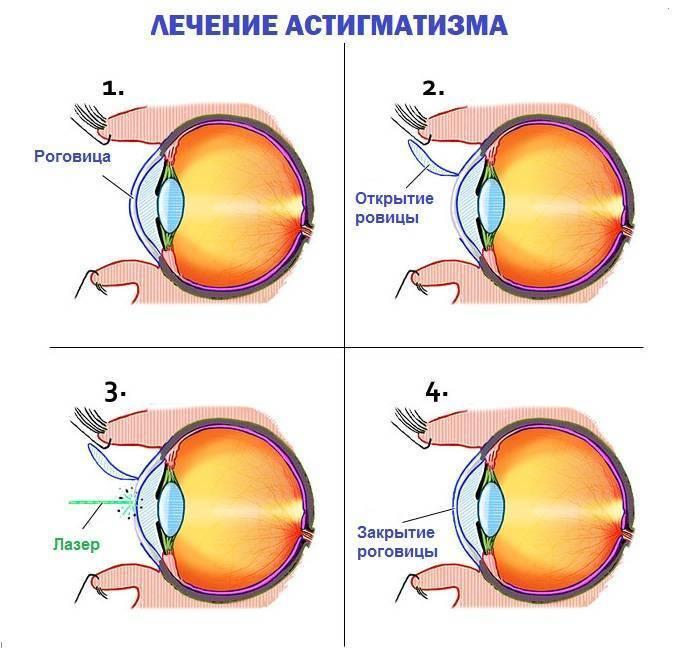 простой гиперметропический астигматизм
