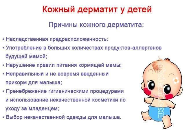 Гв и атопический дерматит - дерматит при кормлении грудью - запись пользователя olenka (id1047841) в сообществе здоровье новорожденных в категории аллергия - babyblog.ru