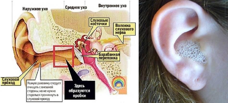 Кровь из ушей, кровь в ухе при чистке ватной палочкой, при отите – причины, почему идет кровь из уха? что делать, если из уха идет кровь?