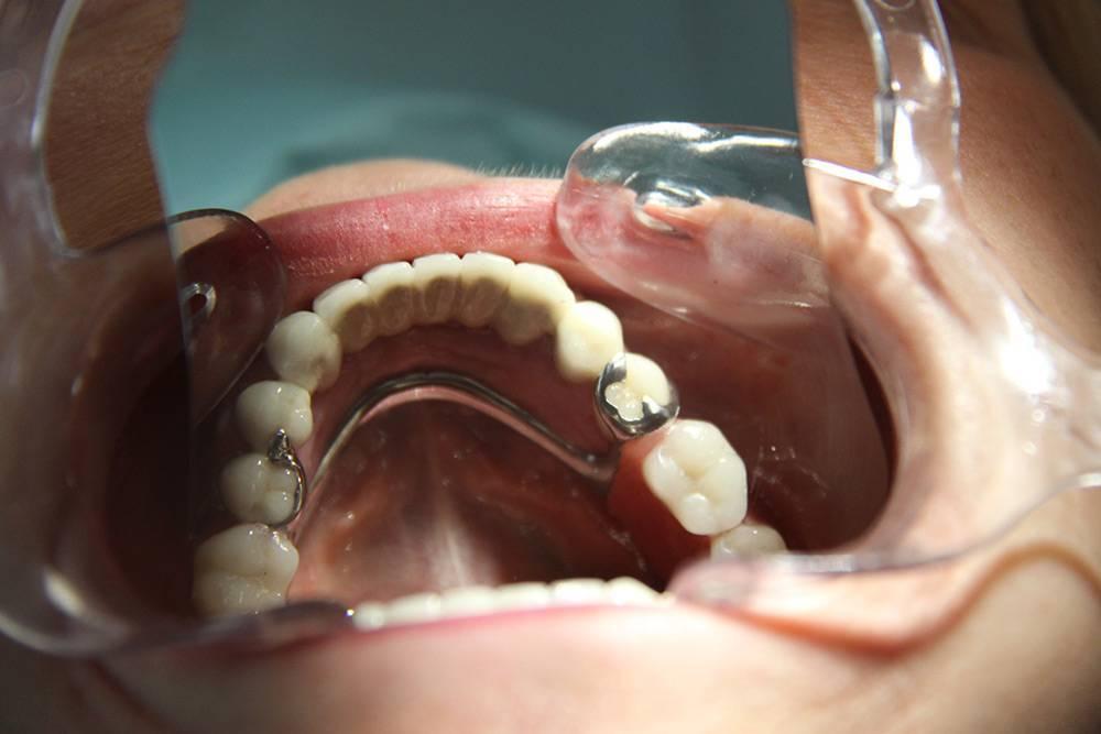 Выбор бюгельного протеза на верхнюю челюсть
