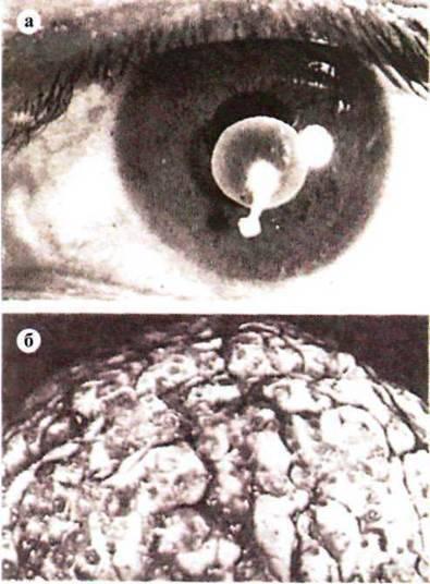 лечение цистицеркоза у человека